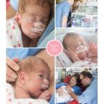Manon en Estee prematuur 29 weken tweeling transfusie syndroom