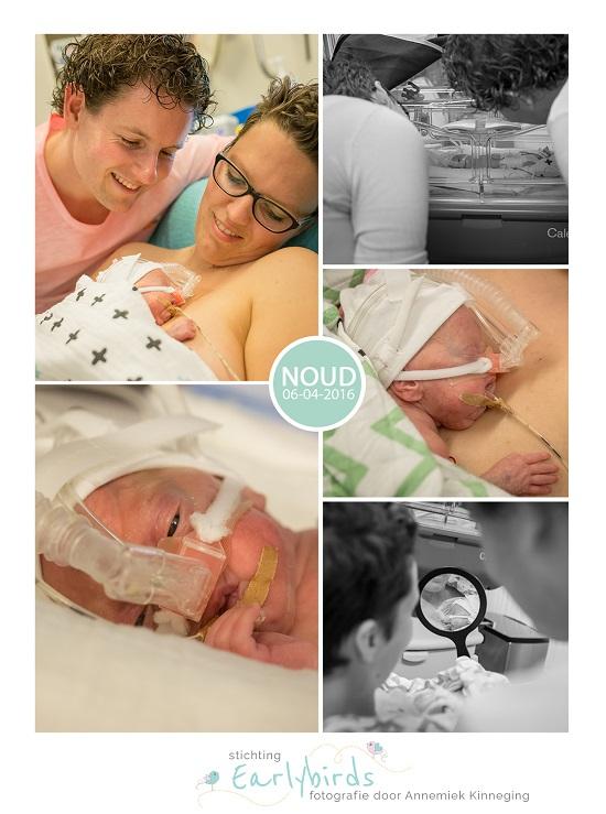 Noud prematuur 24 weken UMCG high care