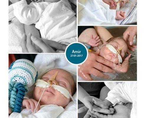Amir prematuur geboren met 24 weken en 5 dagen, MMC Veldhoven, sondevoeding