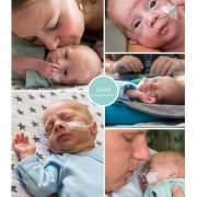 Daan prematuur geboren met 29 weken en 5 dagen, Beatrix ziekenhuis, flesvoeding, buidelen
