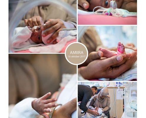 Amiira prematuur geboren met 28 weken en 3 dagen, MCL, zwangerschapsvergiftiging, UMCG, eiwitten, keizersnede