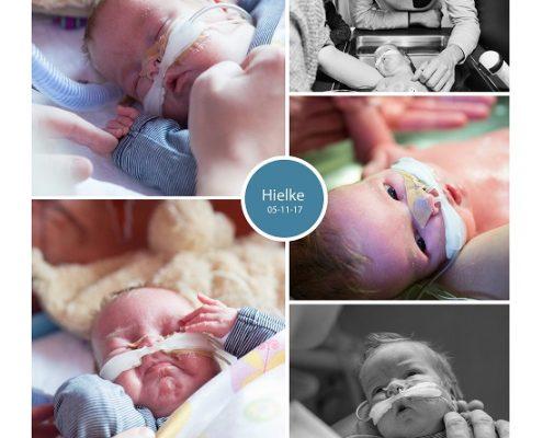 Hielke prematuur geboren met 29 weken en 3 dagen, UMCG, gebroken vliezen, flesvoeding, weeenremmers, keizersnede, NICU, Ronald McDonaldhuis