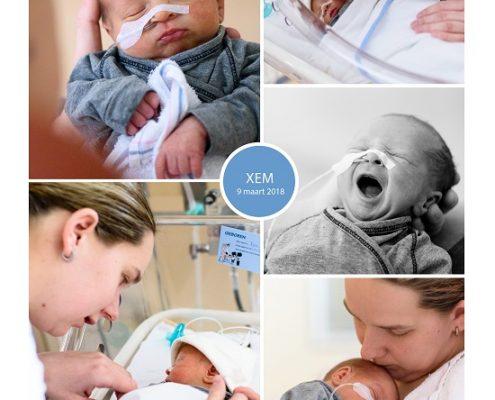 Xem prematuur geboren met 34 weken en 4 dagen, gebroken vliezen, Amphia ziekenhuis Breda, sondevoeding