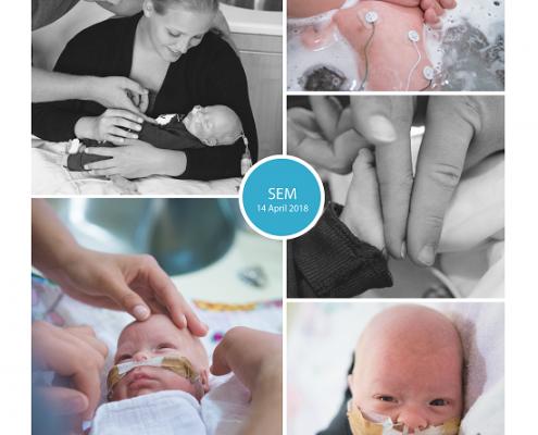 Sem prematuur geboren met 28 weken en 3 dagen, keizersnede, CPAP, UMCG