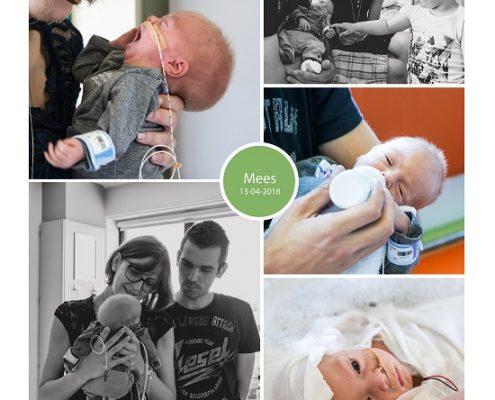 Mees prematuur geboren met 31 weken en 4 dagen, Zuyderland Heerlen, vroeggeboorte, sondevoeding