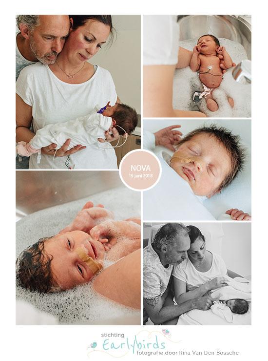 Nova prematuur geboren met 33 weken, flesvoeding, sondevoeding, vroeggeboorte, Reinier de Graaf