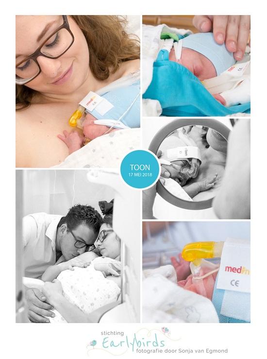 Toon prematuur geboren met 25 weken en 1 dag, LUMC, gebroken vliezen, weeenremmers, sondevoeding