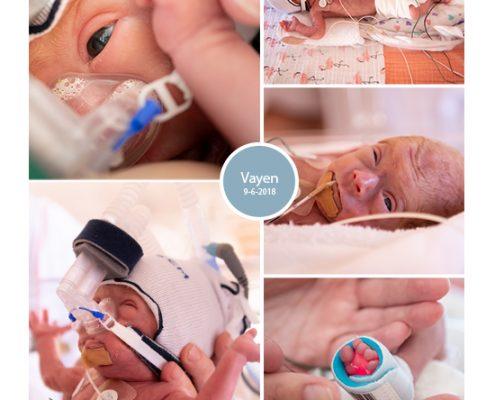 Vayen prematuur geboren met 29 weken en 1 dag, Radboud, vroeggeboorte, CPAP, sondevoeding