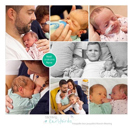 Noèl & Nyne prematuur gebore met 37 weken, tweeling, sonde, longrijping, stuitigging, Ny Smellinghe, keizersnede, couveuse