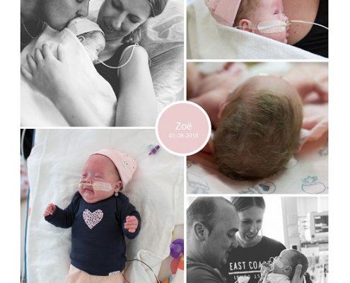 Zoë prematuur geboren met 28 weken en 4 dagen, WKZ, gebroken vliezen, weeenremmers, longrijping, spoedkeizersnede, Meander Amersfoort