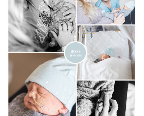 Jesse prematuur geboren met 33+ weken, Vasa Previa, Placenta Previa, spoedkeizersnede, couveuse, CPAP, sonde