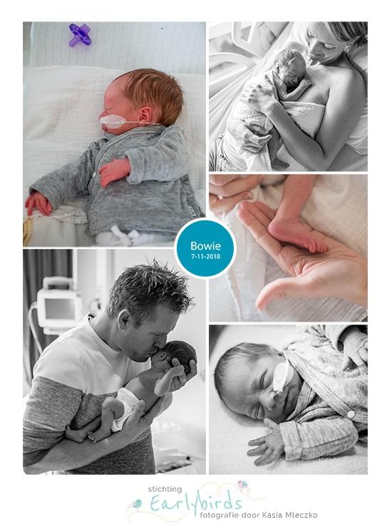 Bowie prematuur geboren met 34 weken, sondevoeding, buidelen