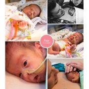 Faye prematuur geboren met 29 weken en 5 dagen, sondevoeding, MMC Veldhoven, vroeggeboorte