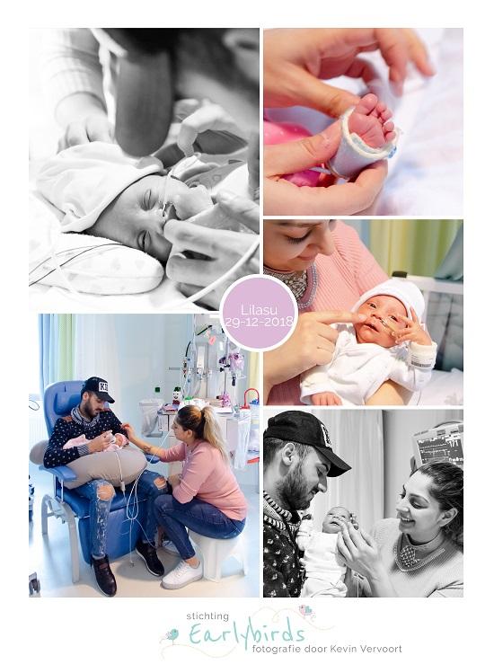 Lilasu prematuur geboren met 32 weken, Maasstad ziekenhuis, sonde, flesvoeding, earlybird