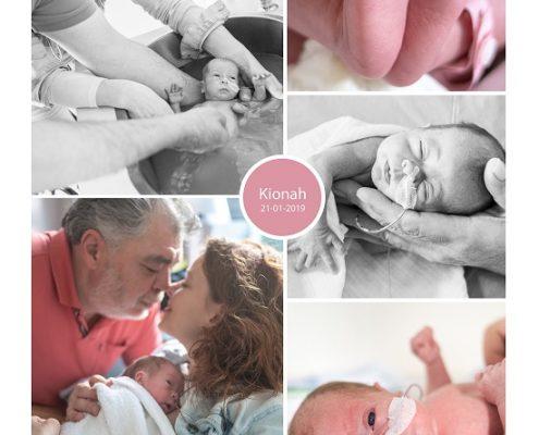 Kionah prematuur geboren met 31 weken, sonde, Meander Amersfoort, buidelen, vroeggeboorte