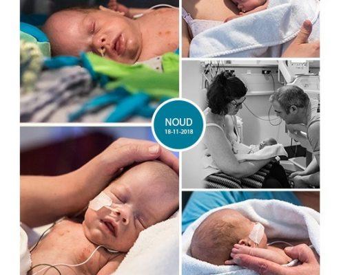 Noud prematuur geboren met 30 weken en 2 dagen, tweeling, groeiachterstand, CTG, longrijping, buidelen, keizersnede, antibiotica, Sophia