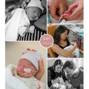 Zoey prematuur geboren met 32 weken, sonde, knuffelen, vroeggeboorte