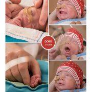 Doris prematuur geboren met 31 weken, /deventer zekenhuis, WKZ, groeiachterstand, spoedkeizersnede, Ronald McDonaldhuis, buidelen, couveuse, sonde