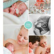 Julian prematuur geboren met 30 weken, St. Franciscus Gasthuis, neonatologie, groeiachterstand, couveuse, buidelen, sonde