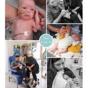 Yves prematuur geboren met 31 weken en 3 dagen, Erasmus MC, keizersnede, Maasstad, sonde, badderen