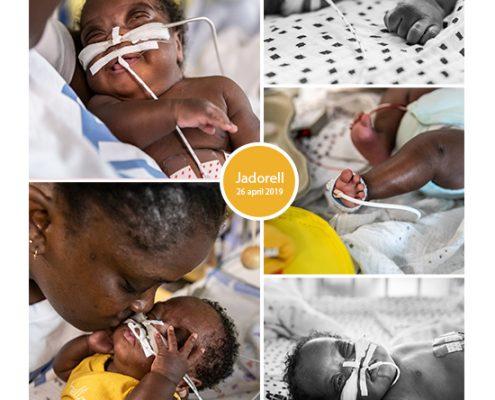 Jadorell prematuur geboren met 26 weken, AMC, sonde, vroeggeboorte