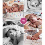 Amy prematuur geboren met 28 weken en 4 dagen, keizersnede, St. Jansdal, zwangerschapsvergiftiging, MMC, Meander, sonde, couveuse