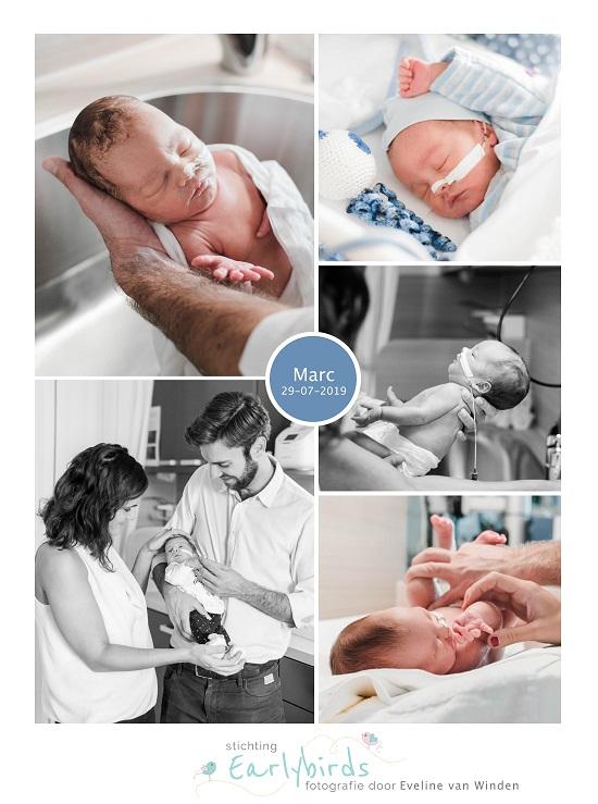 Marc prematuur geboren met 31 weken, JKZ, sonde, badderen, knuffelen