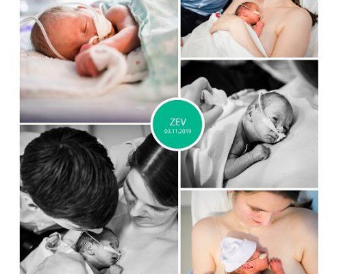Zev prematuur geboren met 31 weken, JKZ, LUMC, gebroken vliezen, sonde, buidelen