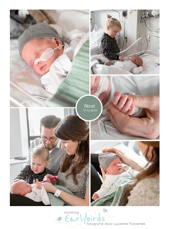 Nout prematuur geboren met 35 weken en 1 dag, sonde, amphia, ivf, stuitligging