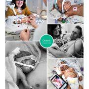 Dennis prematuur geboren met 25 weken en 6 dagen, tweeling, VUMC, longrijping, weeenremmers, NICU, CPAP, buidelen, sonde