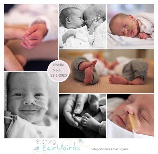 Noëlle & Jolijn prematuur gebore met 32 weken, spoedkeizersnede, tweeling, sondevoeding