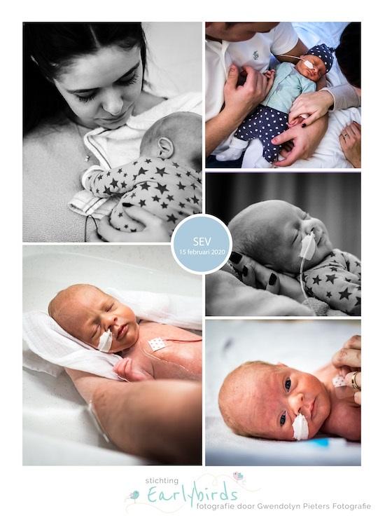 Sev prematuur geboren met 32 weken en 2 dagen, weeenremmers, longrijping, sonde