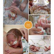 Mats prematuur geboren met 29 weken en 3 dagen, CPAP, high flow, St. Anna, MMC Veldhoven, couveuse