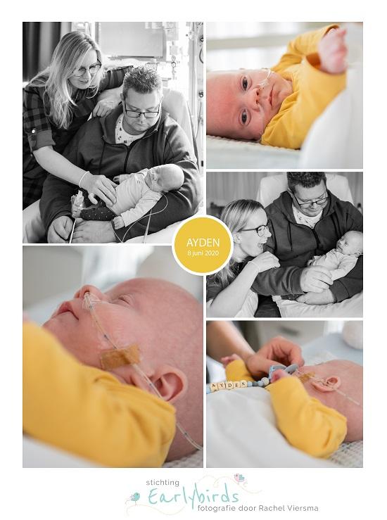 Ayden prematuur geboren met 26 weken, Sophia Kinder Ziekenhuis, sonde, zwangerschapsvergiftiging