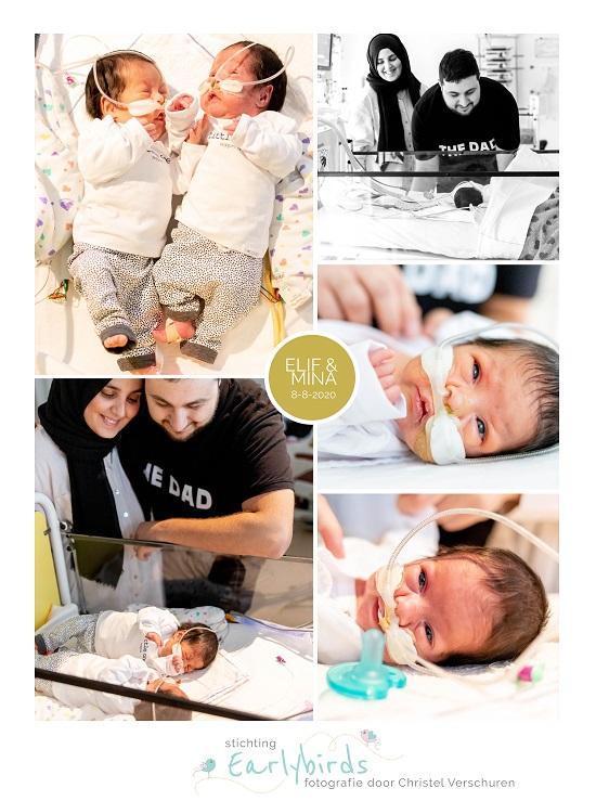 Elif & Mina prematuur geboren met 29 weken, tweeling, MMC, CTG, keizersnede, sonde