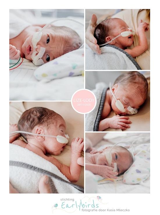Lize-Lody prematuur geboren met 29 weken, VUMC, gebroken vliezen, sonde, buidelen
