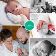 Nora prematuur geboren met 33 weken, keizersnede, couveuse, sonde, pre-eclampsie, HELLP
