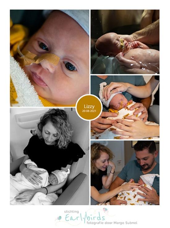 Lizzy prematuur geboren